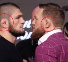 Penyebab Para Petarung UFC Memiliki Bentuk Daun Telinga yang Tak Biasa